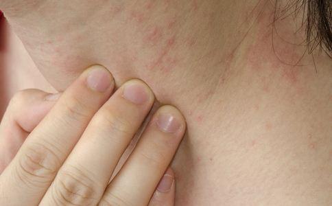 睡梦中手一拍毁容 隐翅虫皮炎如何治疗 隐翅虫皮炎的预防方法
