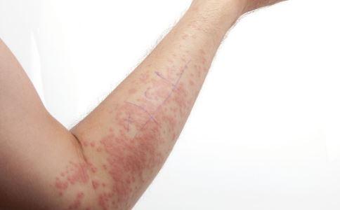 日常过敏怎么办 如何预防过敏 过敏有哪些禁忌