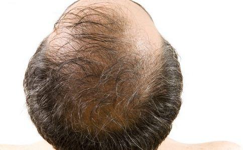 男人谢顶的原因有哪些 男人脱发的原因 哪些原因造成男人脱发
