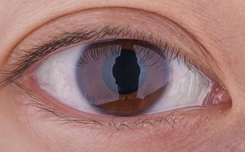 视网膜脱落是什么原因 怎么治疗视网膜脱落 视网膜脱落有哪些治疗方法