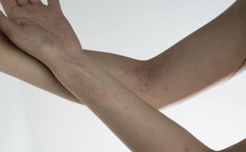 皮肤过敏瘙痒怎么办 常见的过敏原有哪些 皮肤过敏的止痒方法有哪些