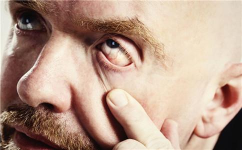 眼睑外翻的症状有哪些 眼睑外翻怎么办 眼睑外翻怎么预防