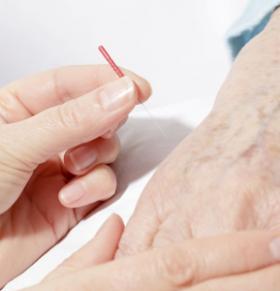 痛风的中医治疗方法 中医针灸怎么治疗痛风 痛风症状的早期表现