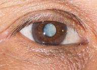 什么是白内障 白内障的症状与治疗 白内障致盲
