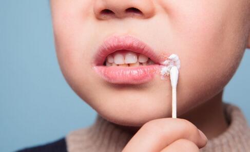 如何预防口角炎 口角炎的预防方法 预防口角炎有哪些方法