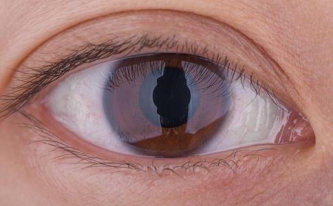 黄斑病变会有哪些危害 黄斑变性的危害 黄斑病变的危害是什么