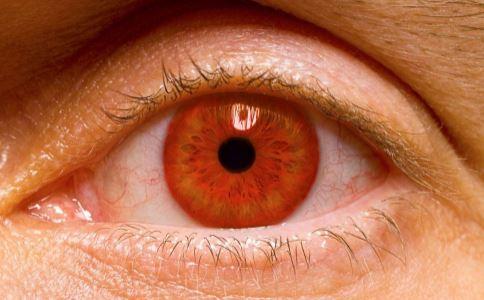 黄斑病变有几种 黄斑病变症状有哪些 黄斑病变表现是什么
