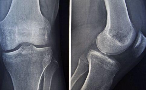 哪些原因导致骨折 骨折如何处理 骨折的处理方法