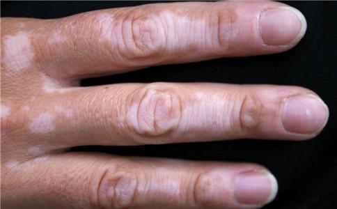 银屑病真的很可怕吗 银屑病有哪些危害 银屑病有哪些症状