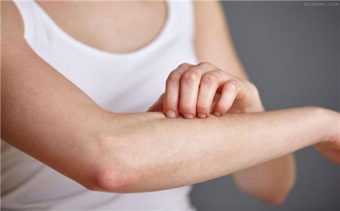 皮肤过敏症状有哪些 皮肤过敏怎样预防 预防皮肤过敏的方法