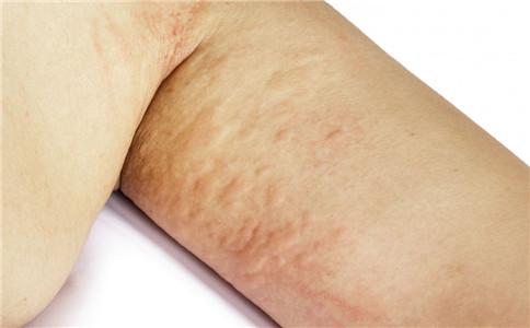 鱼鳞病症状特点是什么 鱼鳞病的危害有哪些 鱼鳞病的症状有哪些