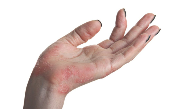 什么是过敏性疾病  常见过敏性疾病有哪些 过敏性疾病