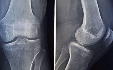 骨折饮食吃什么好 骨折要注意哪些事项 骨折患者吃什么