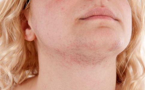 湿疹有哪些禁忌 湿疹如何治疗 治疗湿疹的注意事项