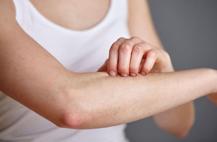 什么是过敏性休克 过敏性休克的临床表现 过敏性休克
