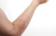 湿疹症状 湿疹治疗方法有哪些 急性湿疹 慢性湿疹