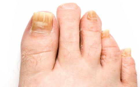 脚臭是什么原因 治疗脚臭的偏方