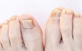 夏季易脚臭 导致脚臭的5个原因
