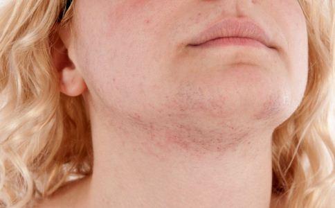 皮肤过敏吃什么好 皮肤过敏的原因 皮肤过敏吃什么食物好