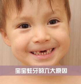 爱吃零食影响牙齿 宝宝蛀牙的六大原因