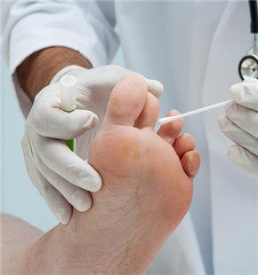 脚廯怎么治疗 推荐五种治疗方法