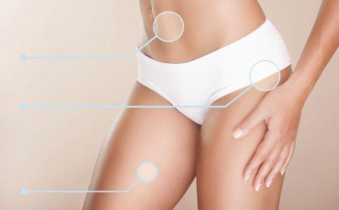 肥胖纹可以去掉吗 有效预防肥胖纹的方法有哪些 怎么预防肥胖纹效果最好