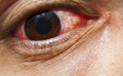 红眼病症状有哪些 红眼病的表现 红眼病治疗方法有哪些