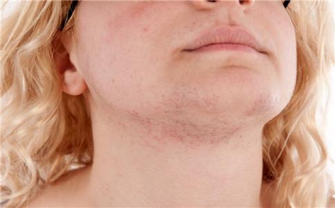 夏季皮炎怎么治 夏季皮炎怎么预防 夏季皮炎有什么症状