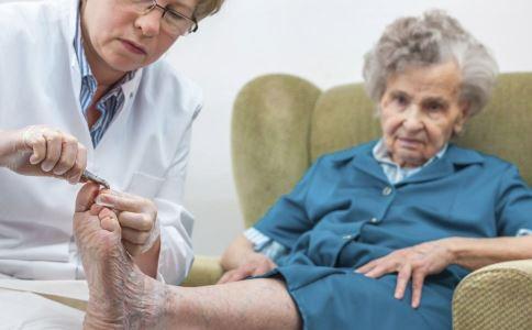 什么是糖尿病坏疽 糖尿病坏疽有哪些症状表现 糖尿病肢端坏疽有几类