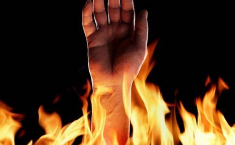 市长救火严重烧伤 市长救火烧伤 烧伤的急救原则