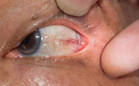 青光眼早期症状有哪些 青光眼能治好吗 青光眼能不能治好