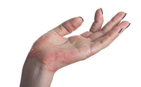 接触性皮炎传染吗 接触性皮炎什么症状 如何预防接触性皮炎