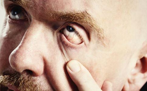 眼睛充血是怎么回事 动脉硬化有哪些征兆 动脉硬化引起眼睛出血怎么办