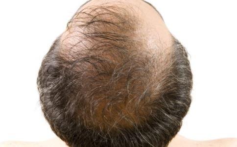 斑秃如何治疗 中医怎么治疗斑秃 斑秃要注意什么