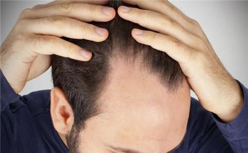 男性脱发吃什么食物好 男性脱发怎么办 男性脱发有什么原因