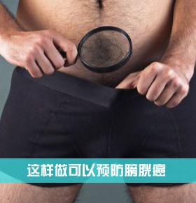 这样做可以预防膀胱癌