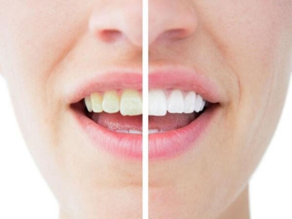 黄黄的牙齿让人不爱 美白牙齿很简单