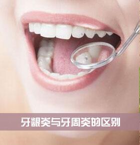 牙龈炎与牙周炎的区别 如何治疗牙龈炎