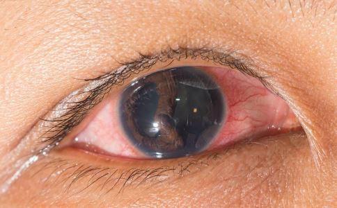 红眼病如何治疗 红眼病检查什么 红眼病可以用眼药水吗