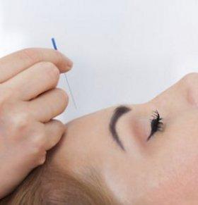 中医如何祛斑 中医怎么祛斑 中医祛斑的方法