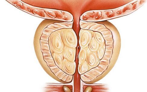肛门出血的原因是什么 入户预防肛门出血 肛门出血的预防方法