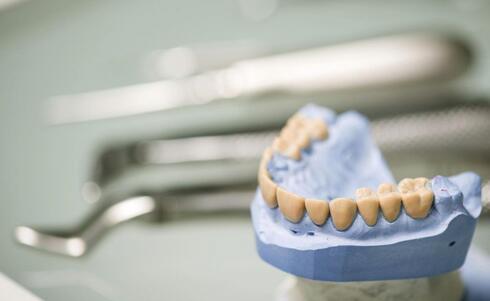 如何治疗牙周炎 牙周炎的治疗方法 什么方法治疗牙周炎