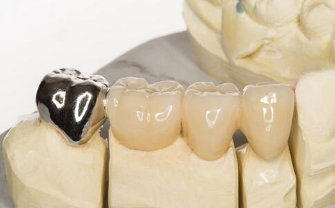 什么情况需要补牙 补牙注意哪些事 补牙注意事项