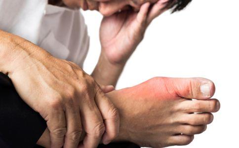 关节扭伤怎么办 关节扭伤要做什么检查 关节扭伤检查要注意什么