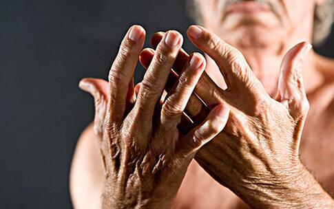 关节炎为什么能预测天气 关节炎变天为什么会痛 关节炎和天气有什么关系