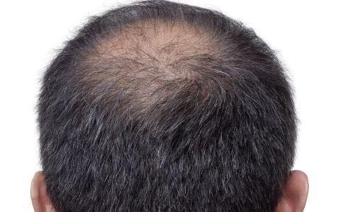 男人脱发有什么征兆 容易掉头发是什么原因 经常掉头发该吃什么