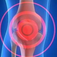 关节炎是怎么来的 引起关节炎的因素 得了关节炎的原因