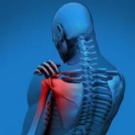关节炎的高危人群 如何判断是否得了关节炎 关节炎症状