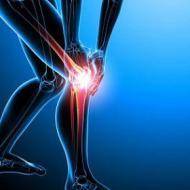 世界关节炎日 有效预防关节炎的方法 关节炎怎么预防