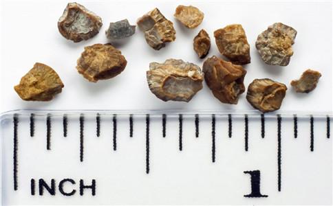 肾结石有什么危害 肾结石的症状有哪些 肾结石预防吃什么